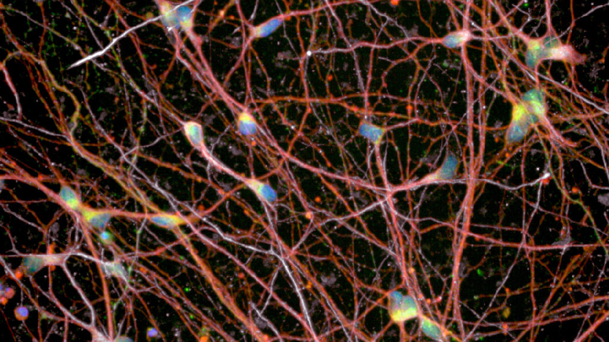 Search for motor neurone disease cure gathers pace