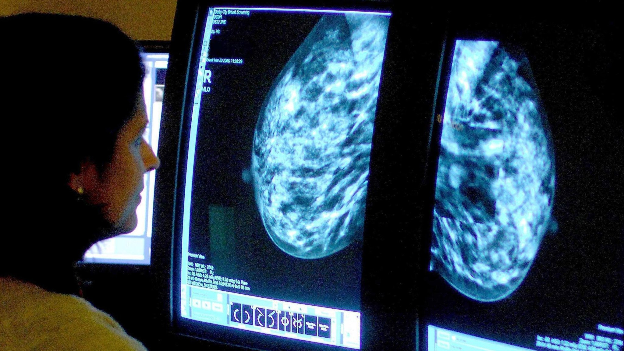 Image result for Roche combo of breast cancer