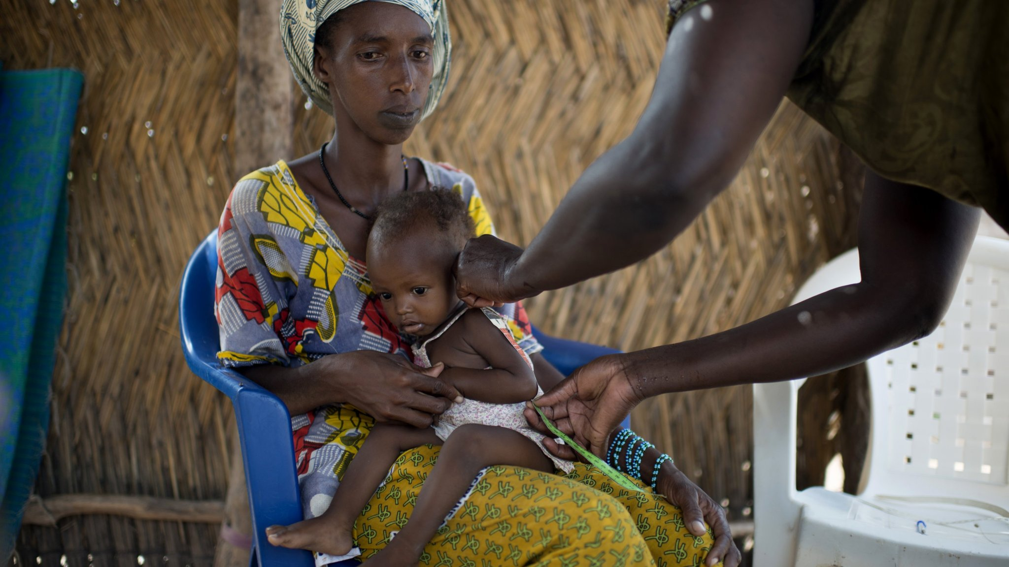 Global nutrition crisis demands step change in response