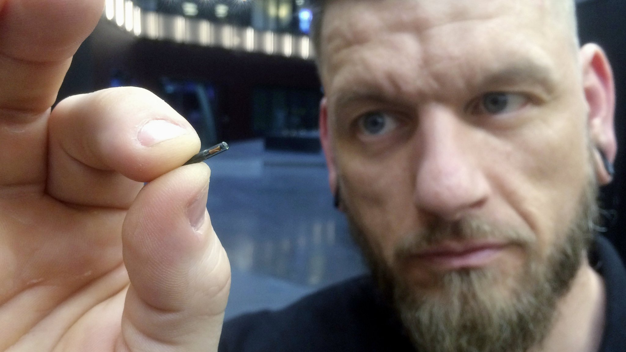 I am microchipped and have no regrets | Financial Times
