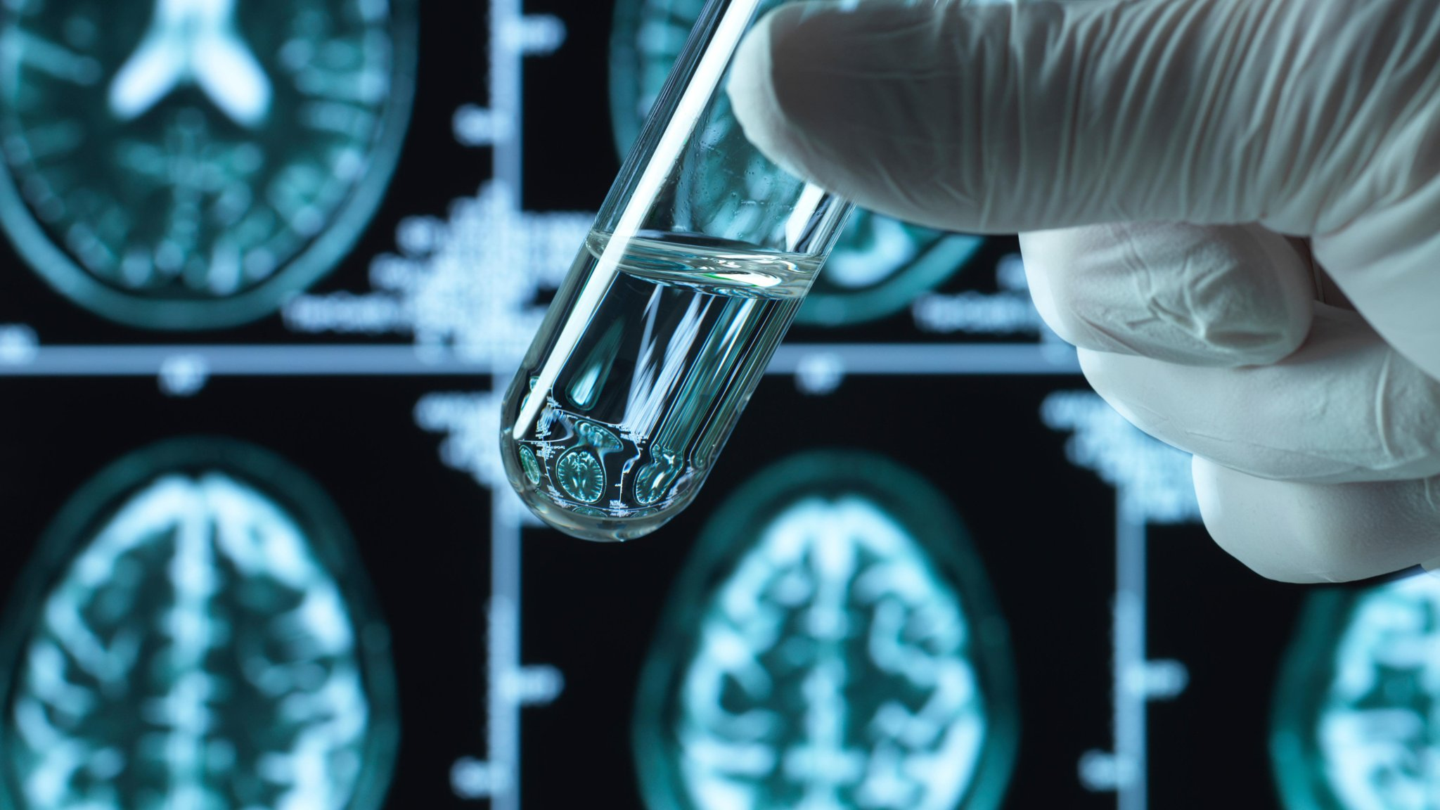 Investors Chronicle: PureTech Health, Bunzl, Thomas Cook